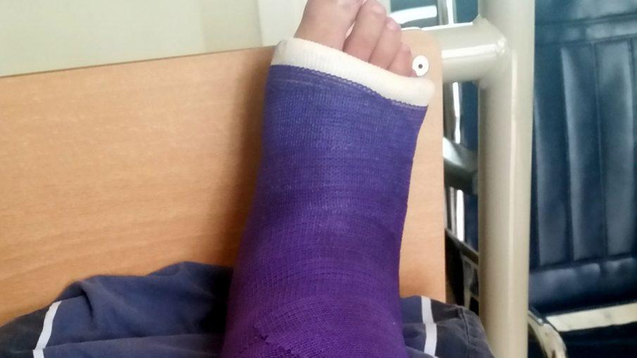 Enkel in het gips na enkel artrodese